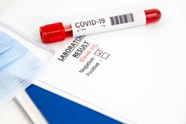 Covit 19 testleri ve yeni aşılar
